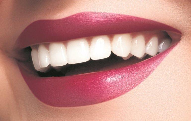 Izbeljivanje zuba cena pozarevac