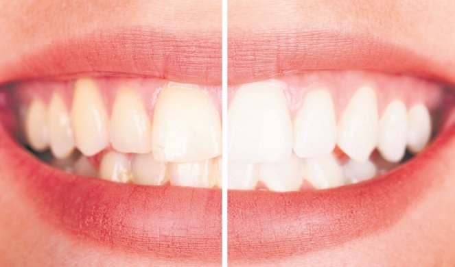 Избјељивање зуба фолијом