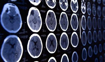 ŠOKANTAN TEST ČUVENOG PROFESORA NEUROLOGIJE! Otkrijte koliko je star vaš mozak i kako radi